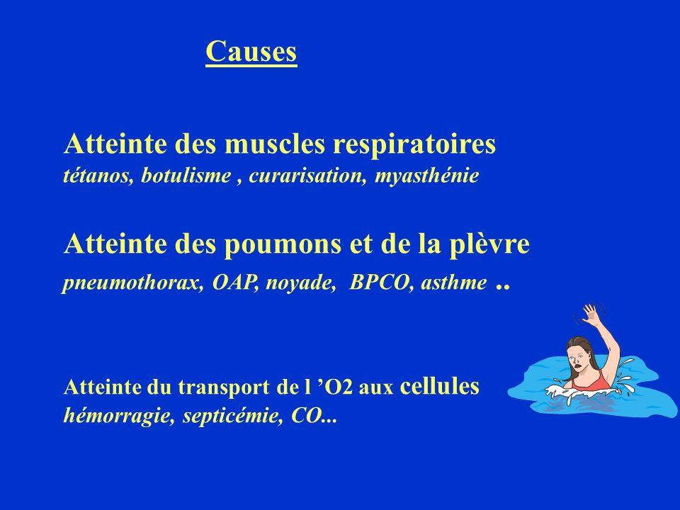 SIGNES CLINIQUES Dyspnée bradypnée 25 Cyanose, sueurs,, tachycardie puis bradycardie anoxique HTA agitation, anxiété.
