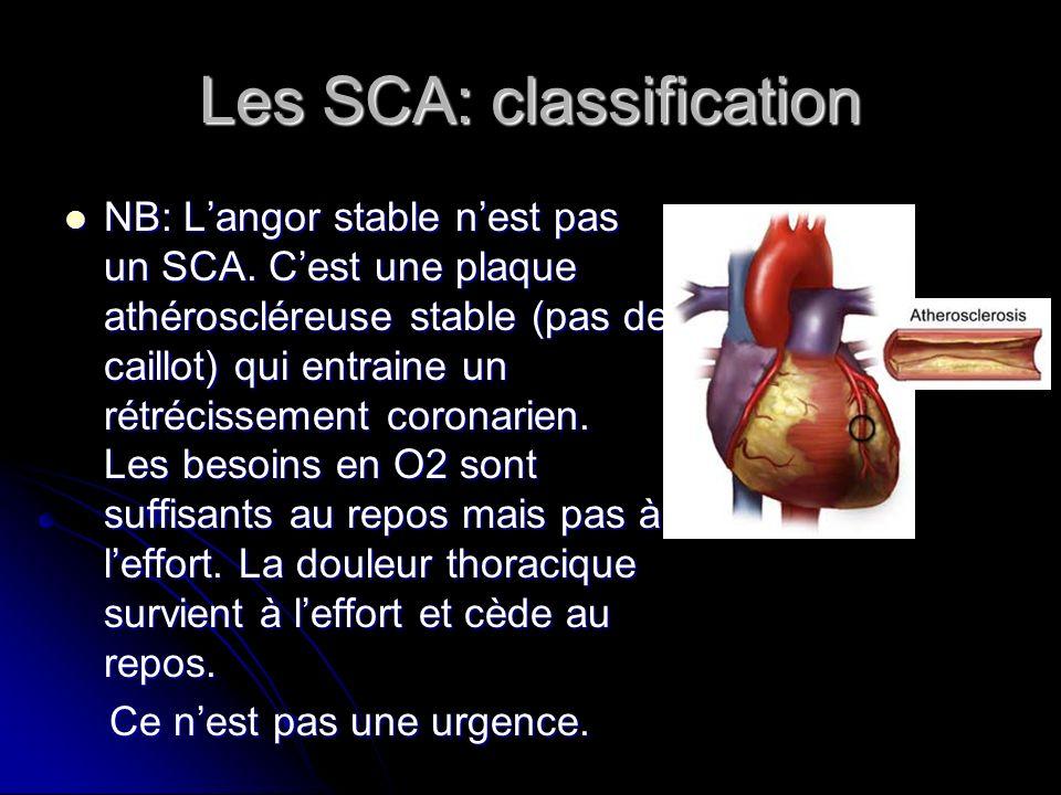 Les SCA: classification NB: Langor stable nest pas un SCA. Cest une plaque athéroscléreuse stable (pas de caillot) qui entraine un rétrécissement coro