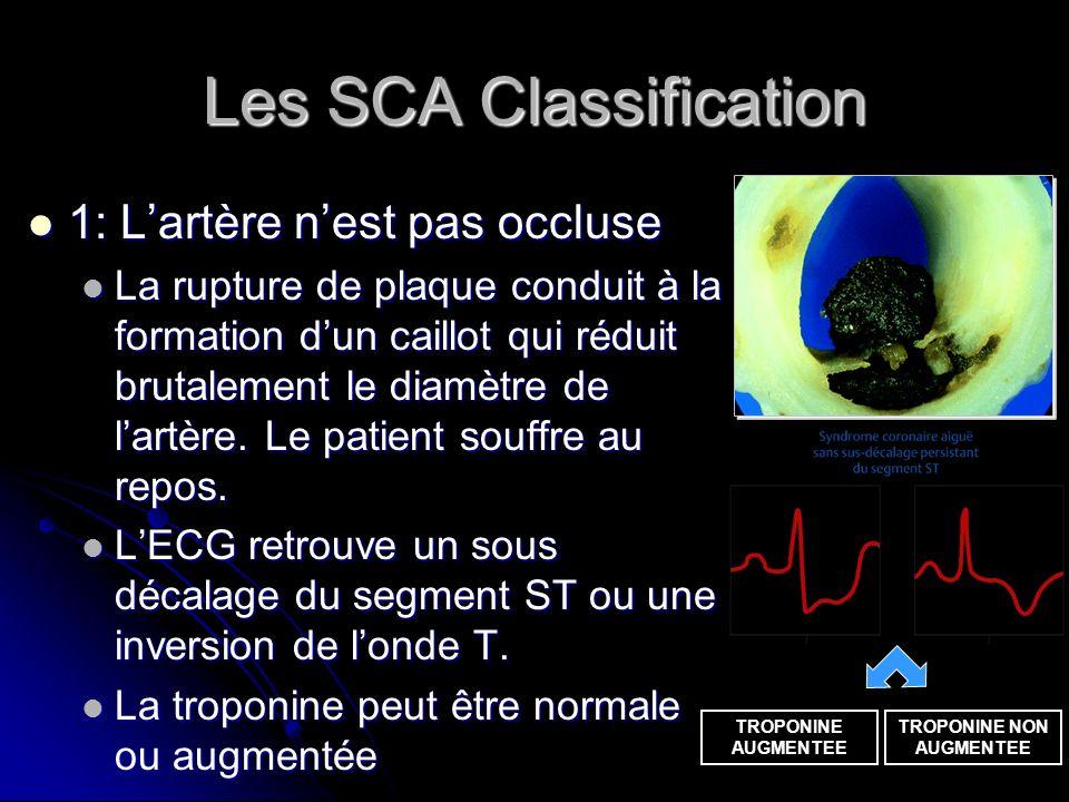 Les SCA Classification 1: Lartère nest pas occluse 1: Lartère nest pas occluse La rupture de plaque conduit à la formation dun caillot qui réduit brut