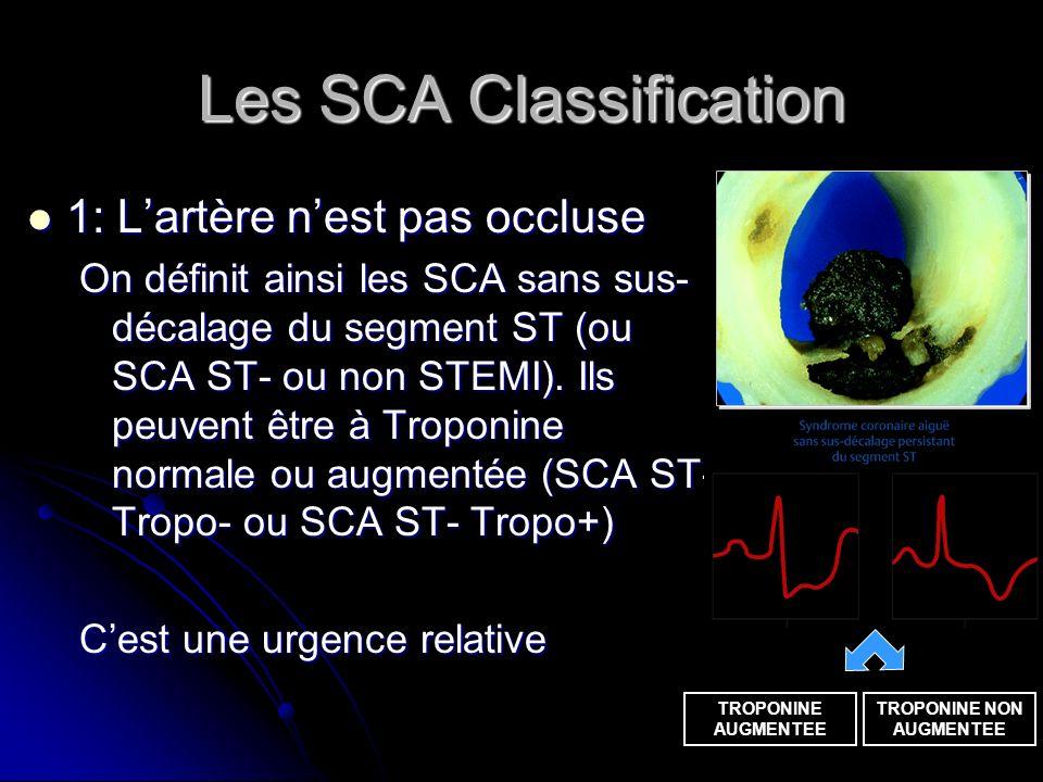 Les SCA Classification 1: Lartère nest pas occluse 1: Lartère nest pas occluse On définit ainsi les SCA sans sus- décalage du segment ST (ou SCA ST- o