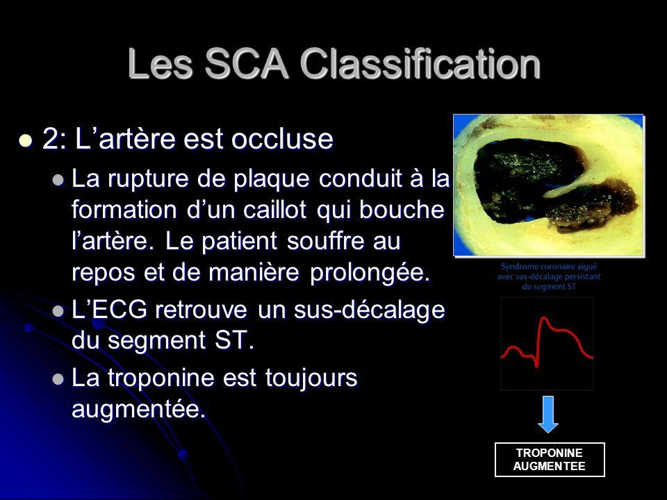 Les SCA Classification 2: Lartère est occluse 2: Lartère est occluse La rupture de plaque conduit à la formation dun caillot qui bouche lartère. Le pa