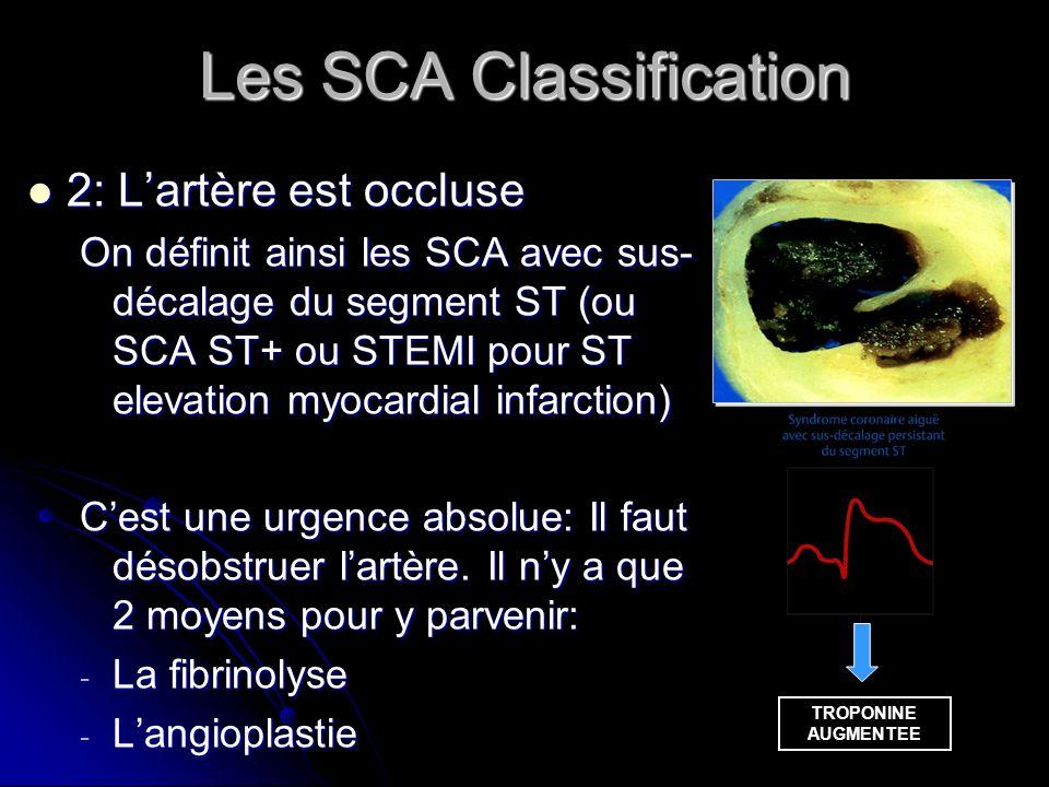 Les SCA Classification 2: Lartère est occluse 2: Lartère est occluse On définit ainsi les SCA avec sus- décalage du segment ST (ou SCA ST+ ou STEMI po