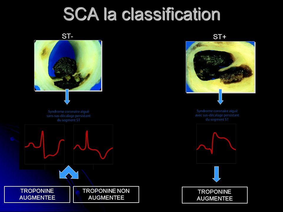 SCA la classification TROPONINE AUGMENTEE TROPONINE NON AUGMENTEE ST- ST+