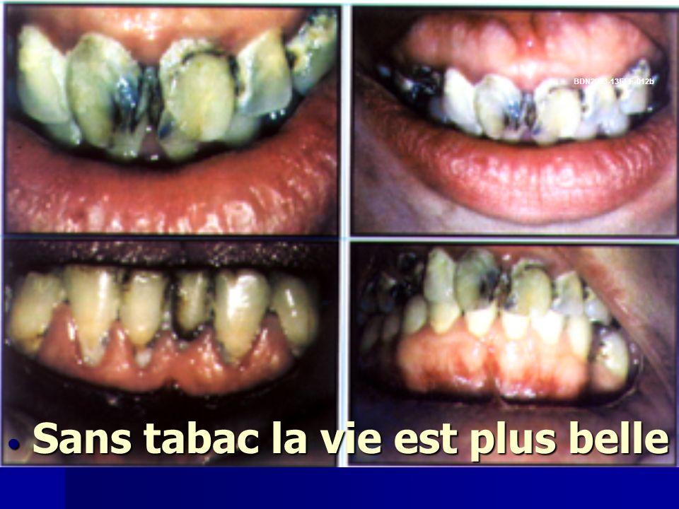 Dents Sans tabac la vie est plus belle Sans tabac la vie est plus belle BDN2003-13EFF-012b