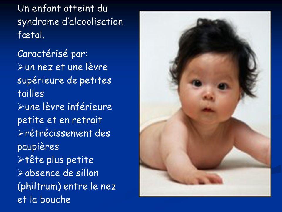 Un enfant atteint du syndrome dalcoolisation fœtal. Caractérisé par: un nez et une lèvre supérieure de petites tailles une lèvre inférieure petite et