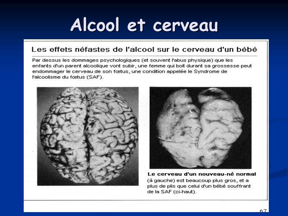 Alcool et cerveau