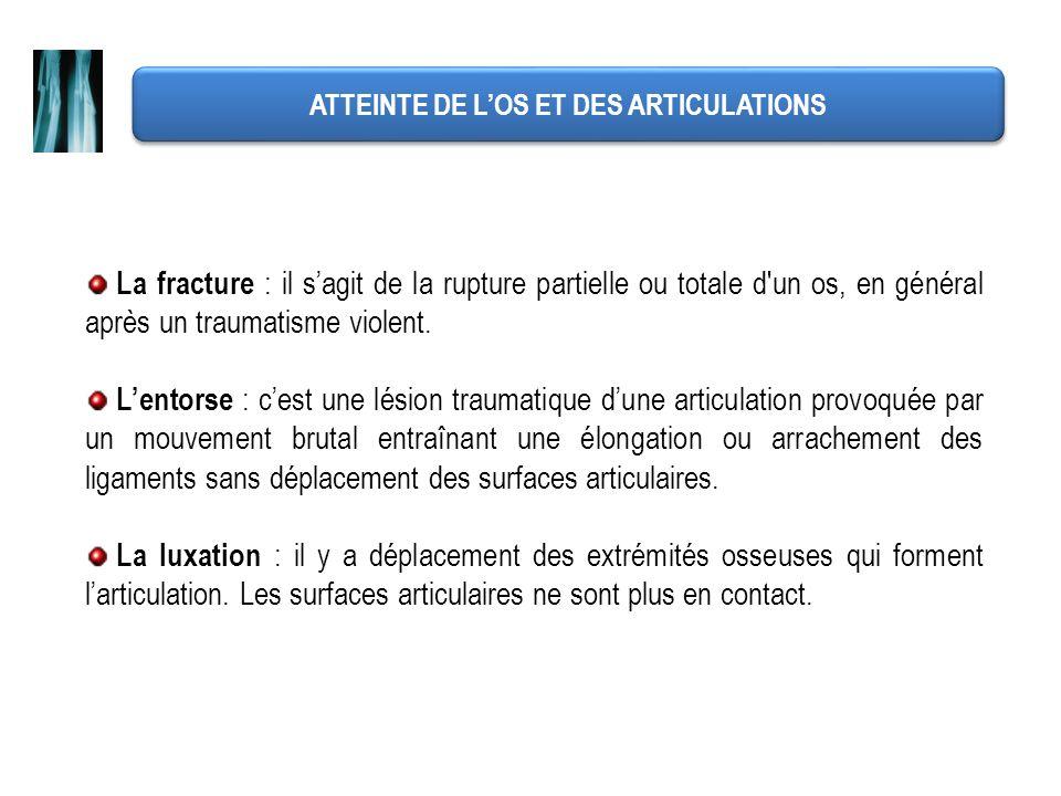 ATTEINTE DE LOS ET DES ARTICULATIONS La fracture : il sagit de la rupture partielle ou totale d'un os, en général après un traumatisme violent. Lentor