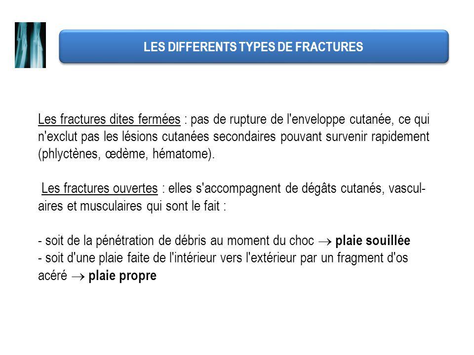 LES DIFFERENTS TYPES DE FRACTURES Les fractures dites fermées : pas de rupture de l'enveloppe cutanée, ce qui n'exclut pas les lésions cutanées second