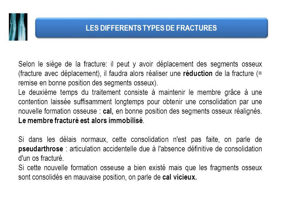 LES DIFFERENTS TYPES DE FRACTURES Selon le siège de la fracture: il peut y avoir déplacement des segments osseux (fracture avec déplacement), il faudr