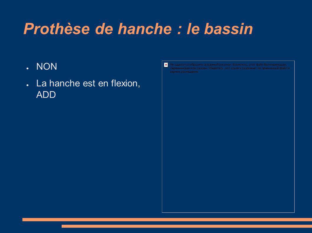 Prothèse de hanche : le bassin NON La hanche est en flexion, ADD