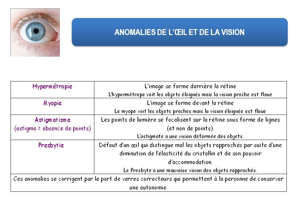 ANOMALIES DE LŒIL ET DE LA VISION