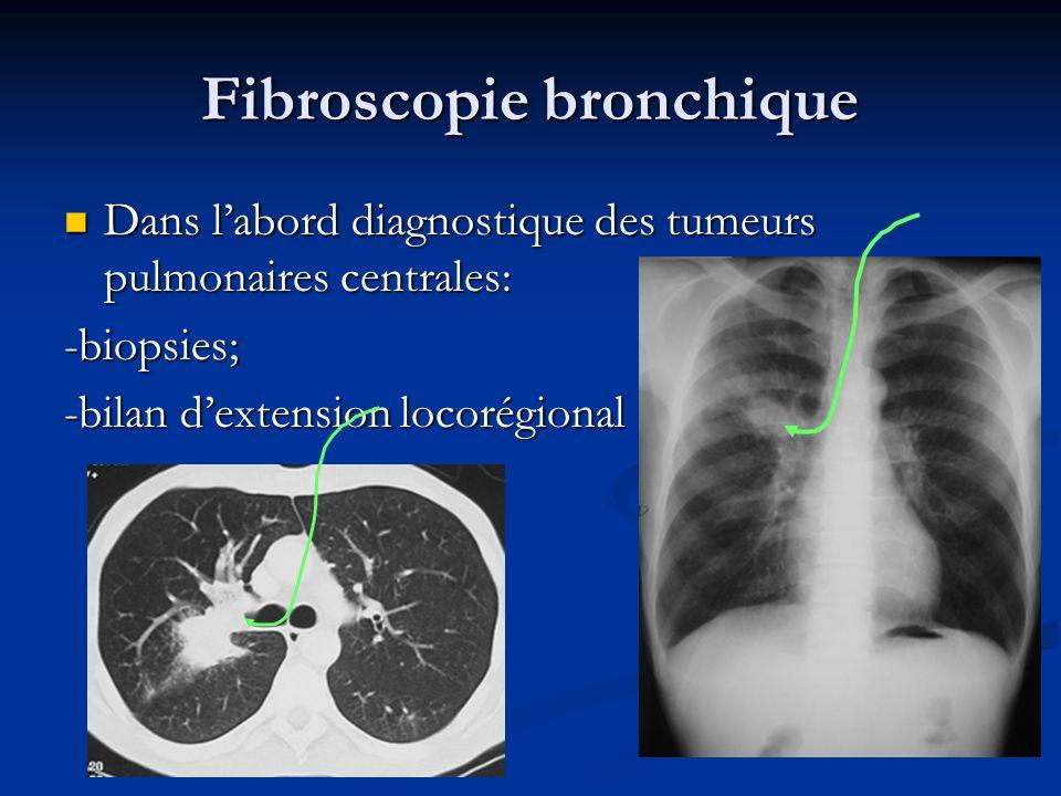 Fibroscopie bronchique Dans labord diagnostique des tumeurs pulmonaires centrales: Dans labord diagnostique des tumeurs pulmonaires centrales:-biopsie