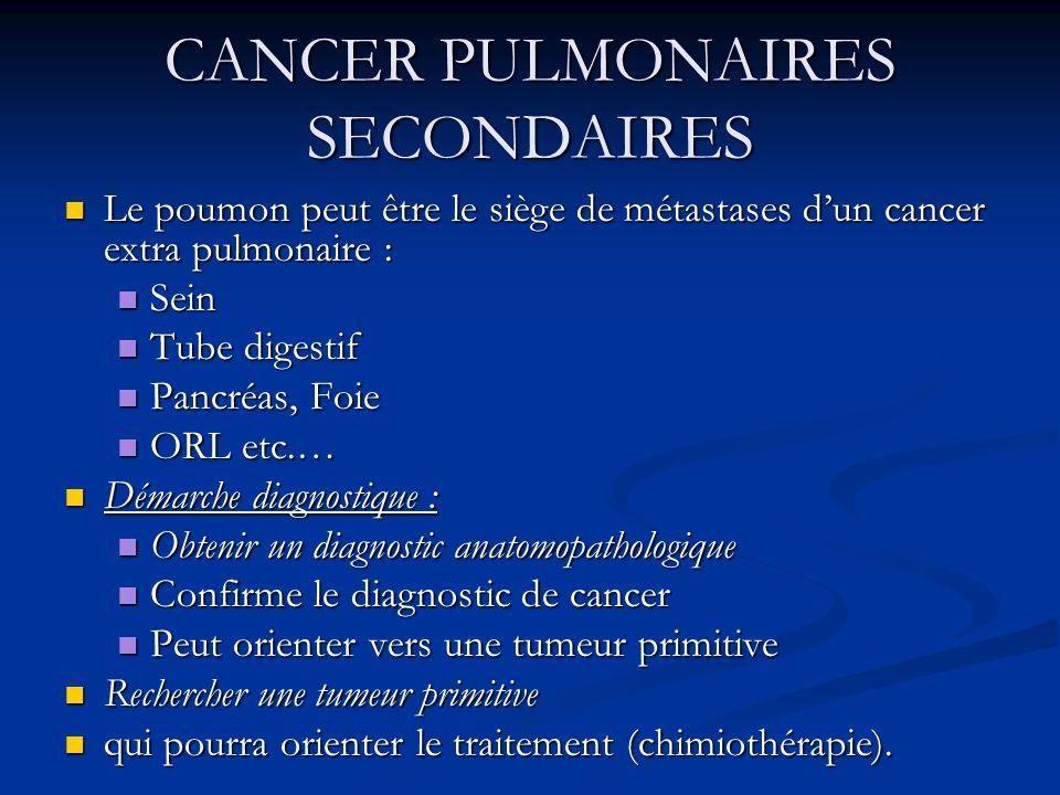 CANCER PULMONAIRES SECONDAIRES Le poumon peut être le siège de métastases dun cancer extra pulmonaire : Le poumon peut être le siège de métastases dun