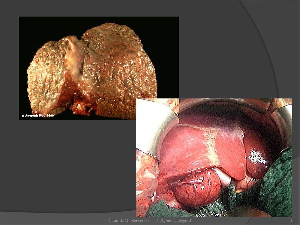Cours de Me Becker le 04/12/08, module digestif24 3.Carcinome hépato-cellulaire, (cancer primitif du foie).