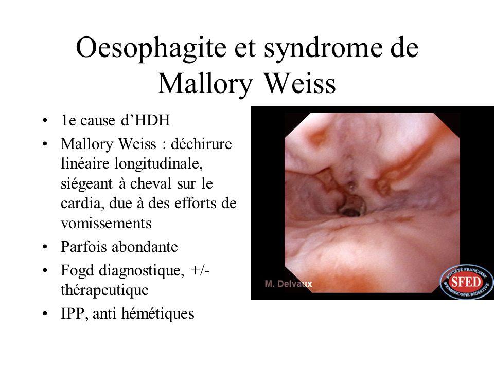 Oesophagite et syndrome de Mallory Weiss 1e cause dHDH Mallory Weiss : déchirure linéaire longitudinale, siégeant à cheval sur le cardia, due à des ef