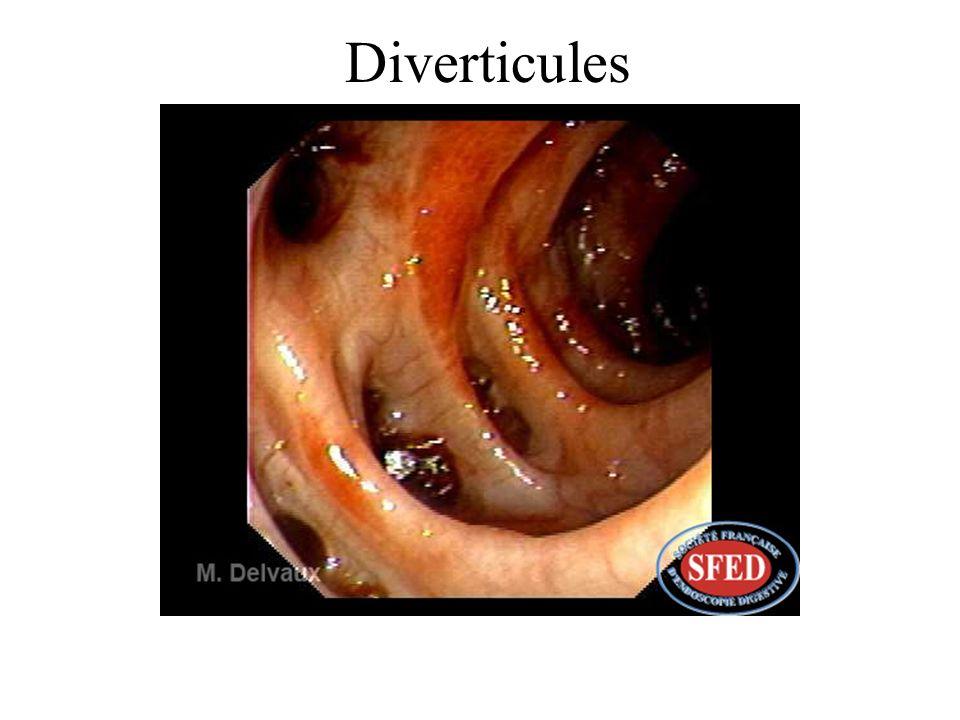 Diverticules