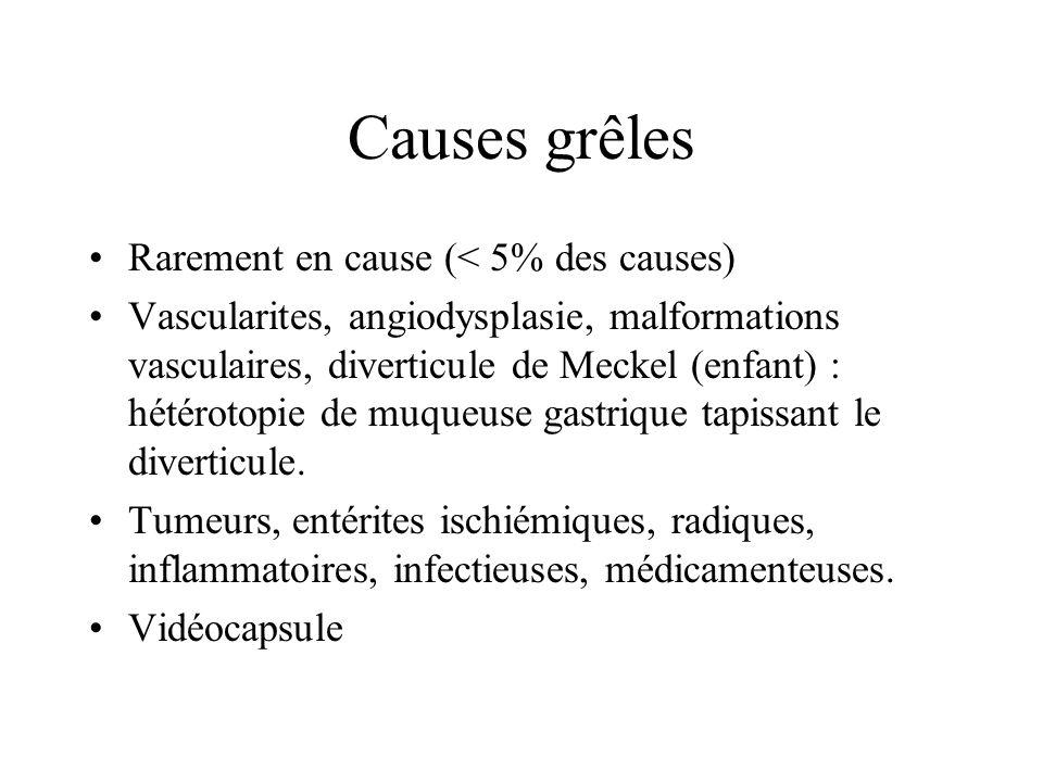Causes grêles Rarement en cause (< 5% des causes) Vascularites, angiodysplasie, malformations vasculaires, diverticule de Meckel (enfant) : hétérotopi