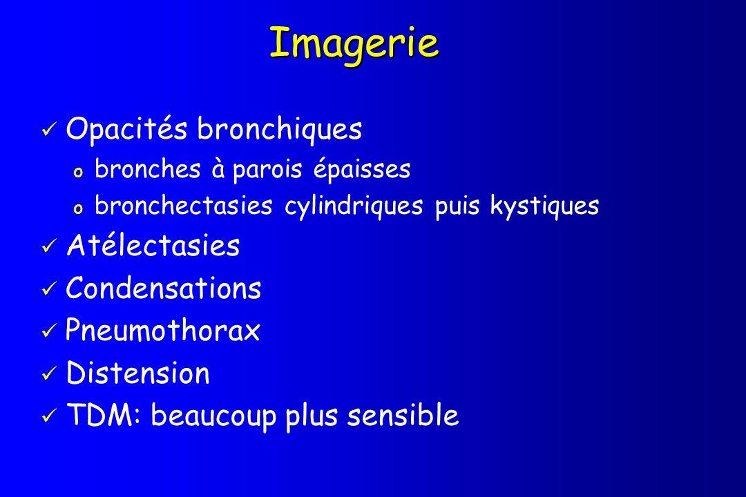 Imagerie Opacités bronchiques o bronches à parois épaisses o bronchectasies cylindriques puis kystiques Atélectasies Condensations Pneumothorax Disten