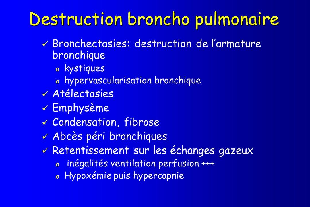 Destruction broncho pulmonaire Bronchectasies: destruction de larmature bronchique o kystiques o hypervascularisation bronchique Atélectasies Emphysèm