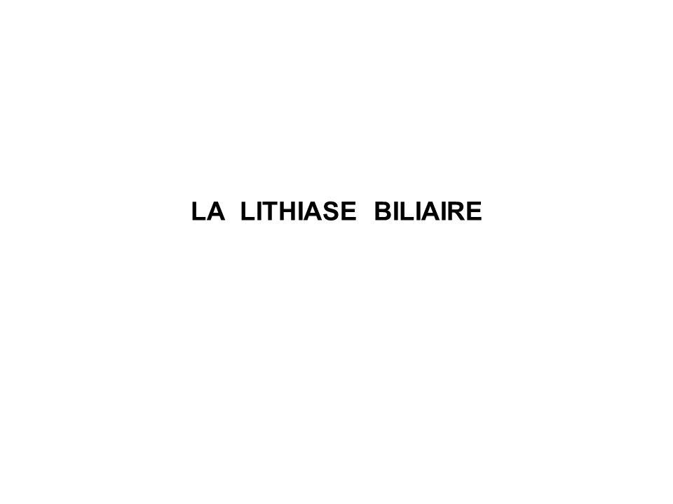 Lithiase vésiculaire à léchographie abdominale