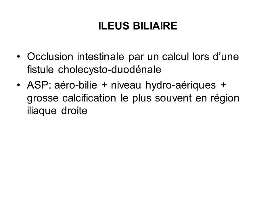 ILEUS BILIAIRE Occlusion intestinale par un calcul lors dune fistule cholecysto-duodénale ASP: aéro-bilie + niveau hydro-aériques + grosse calcificati