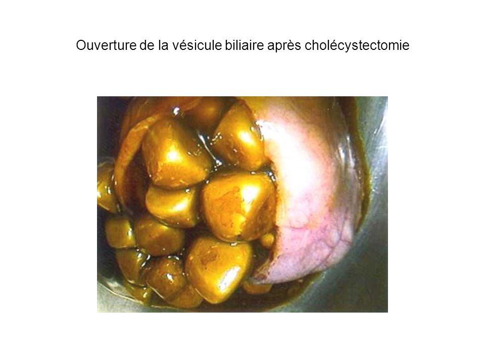 Ouverture de la vésicule biliaire après cholécystectomie
