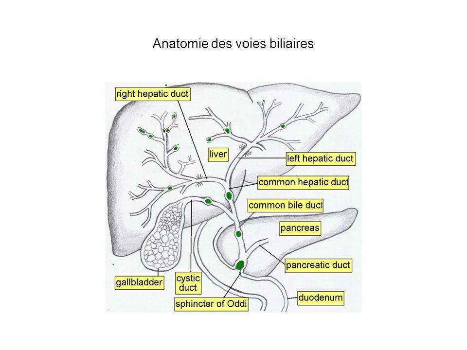 LITHIASE DE LA VOIE BILIAIRE PRINCIPALE Tableaux cliniques: - forme asymptomatique - syndrome de migration lithiasique: associe la séquence douleur-fièvre-ictère en 24-48 heures avec soit résolution soit angiocholite - angiocholite : idem avec tableau de septicémie Biologie: hyperbilirubinémie, hyperleucocytose, hémocultures souvent positives à bacilles GRAM- Examens morphologiques: dilatation des voies biliaires extra-hépatiques +/- intra-hépatiques avec présence de lithiase(s) : Echographie abdominale,TDM, Bili-IRM