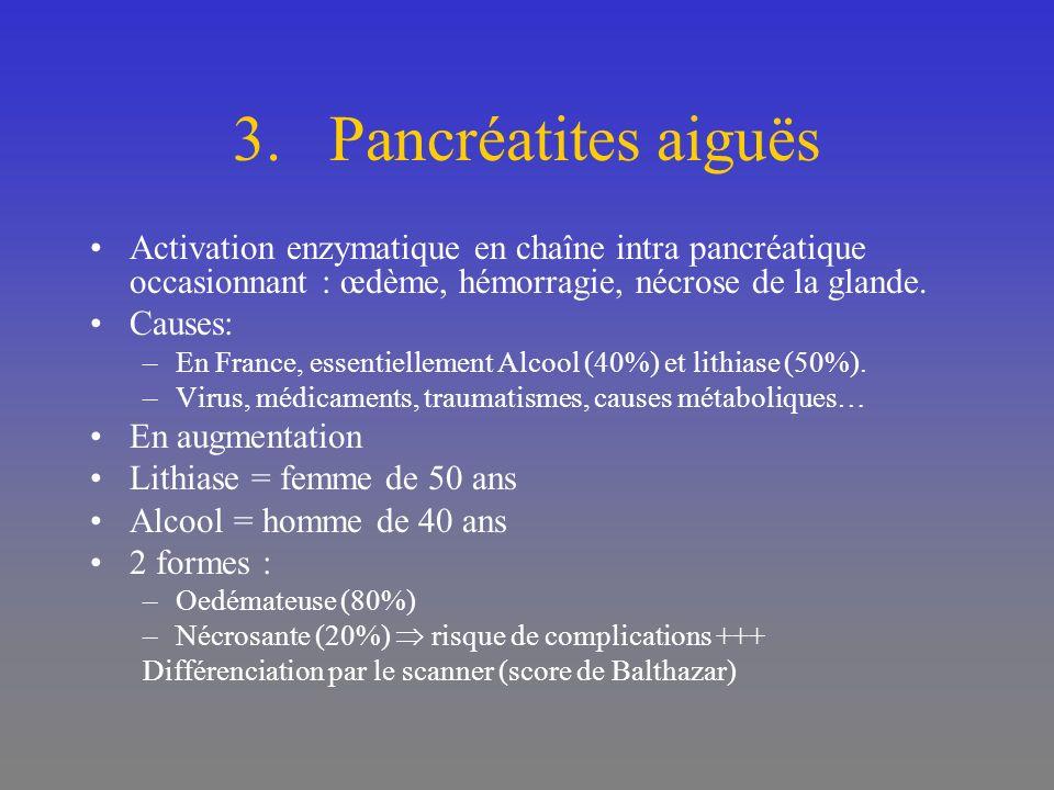 3.Pancréatites aiguës Activation enzymatique en chaîne intra pancréatique occasionnant : œdème, hémorragie, nécrose de la glande. Causes: –En France,