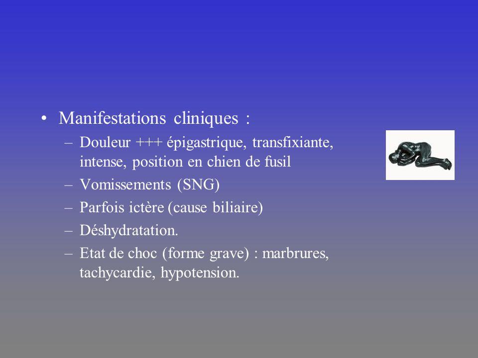 Manifestations cliniques : –Douleur +++ épigastrique, transfixiante, intense, position en chien de fusil –Vomissements (SNG) –Parfois ictère (cause bi