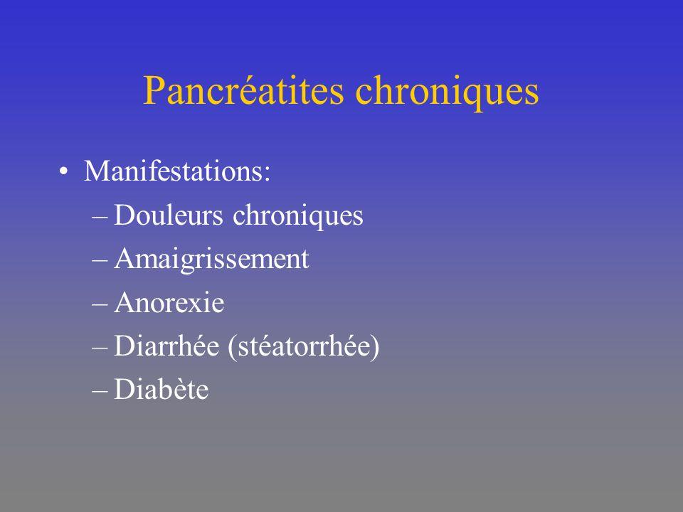 Pancréatites chroniques Manifestations: –Douleurs chroniques –Amaigrissement –Anorexie –Diarrhée (stéatorrhée) –Diabète