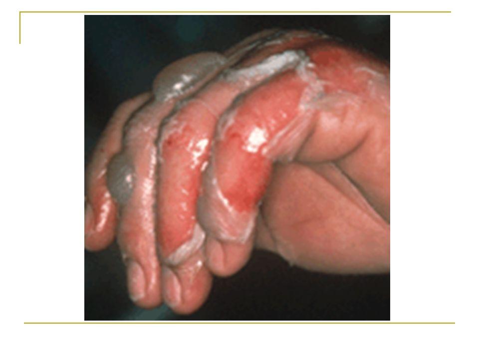 4) Les dangers Les solutions acides et basiques sont corrosives et peuvent provoquer de graves brûlures .