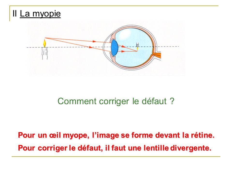 II La myopie Pour un œil myope, limage se forme devant la rétine. Comment corriger le défaut ? Pour corriger le défaut, il faut une lentille divergent
