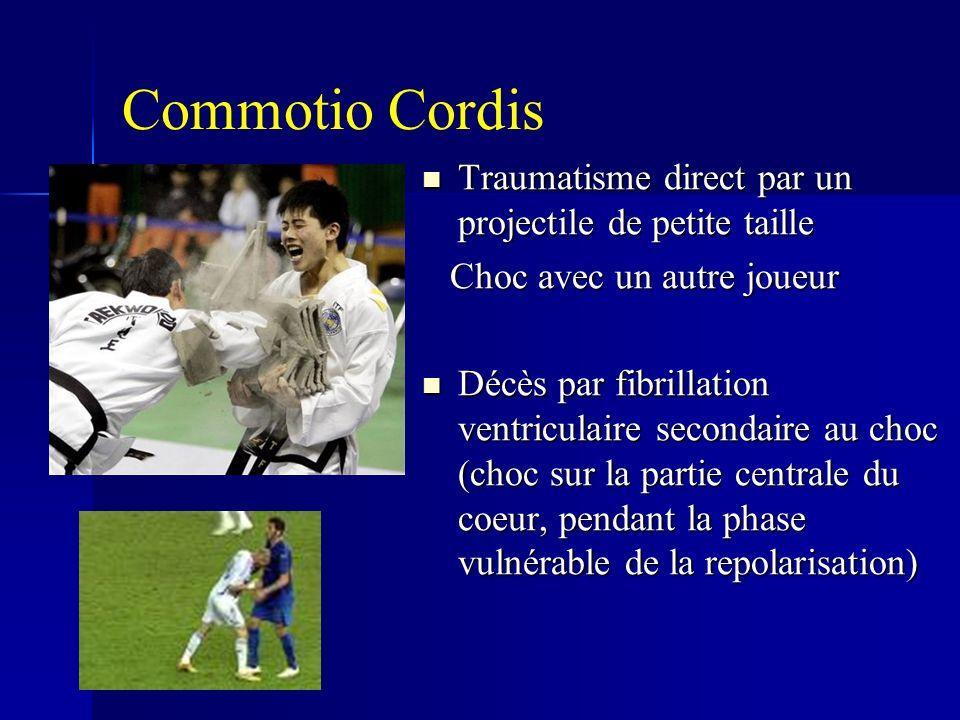 Commotio Cordis Traumatisme direct par un projectile de petite taille Traumatisme direct par un projectile de petite taille Choc avec un autre joueur