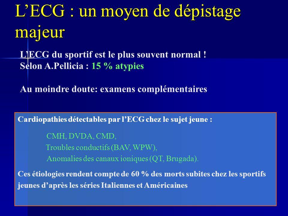 LECG : un moyen de dépistage majeur Cardiopathies détectables par lECG chez le sujet jeune : CMH, DVDA, CMD, Troubles conductifs (BAV, WPW), Anomalies des canaux ioniques (QT, Brugada).
