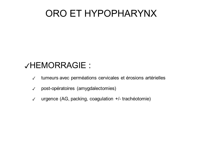 ORO ET HYPOPHARYNX HEMORRAGIE : tumeurs avec perméations cervicales et érosions artérielles post-opératoires (amygdalectomies) urgence (AG, packing, coagulation +/- trachéotomie)