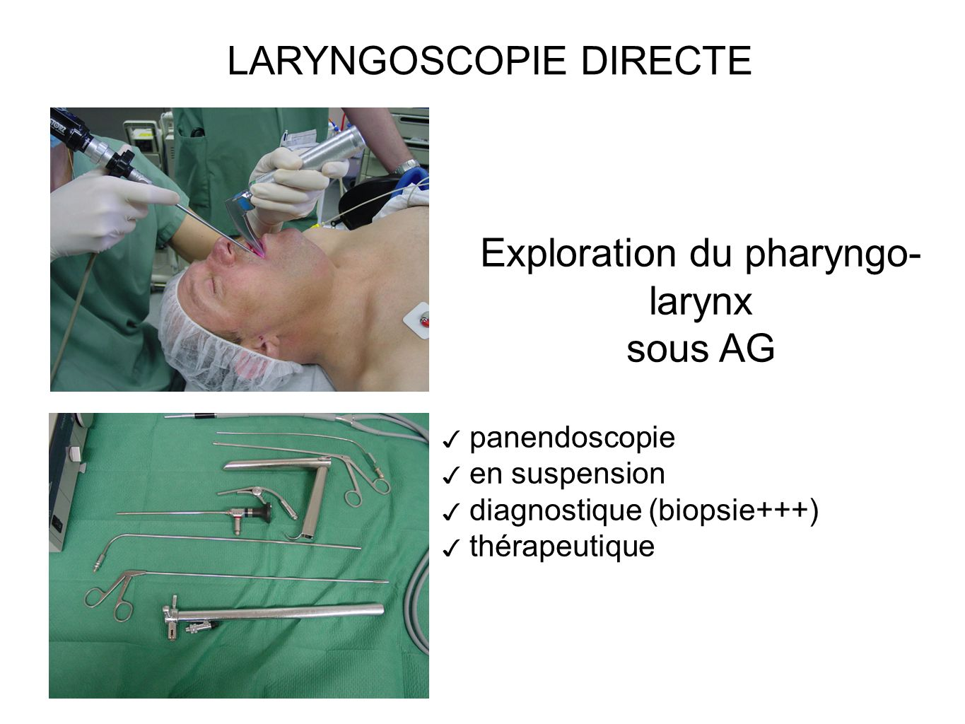 Exploration du pharyngo- larynx sous AG panendoscopie en suspension diagnostique (biopsie+++) thérapeutique LARYNGOSCOPIE DIRECTE