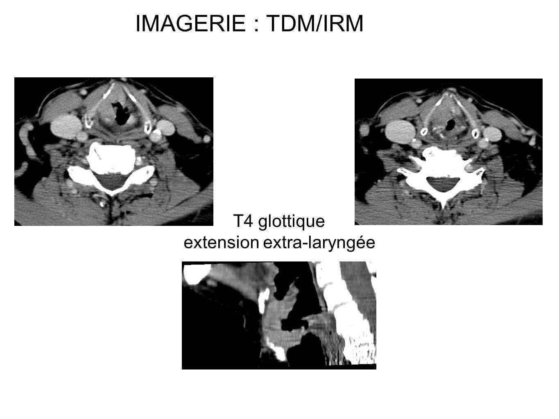 IMAGERIE : TDM/IRM T4 glottique extension extra-laryngée
