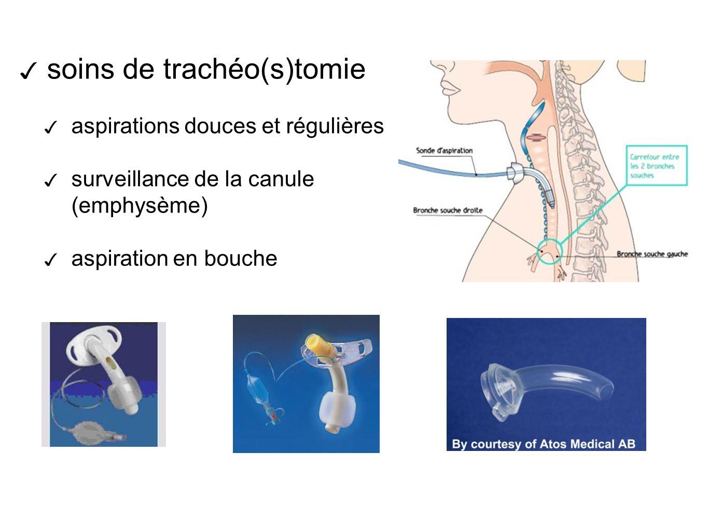 soins de trachéo(s)tomie aspirations douces et régulières surveillance de la canule (emphysème) aspiration en bouche
