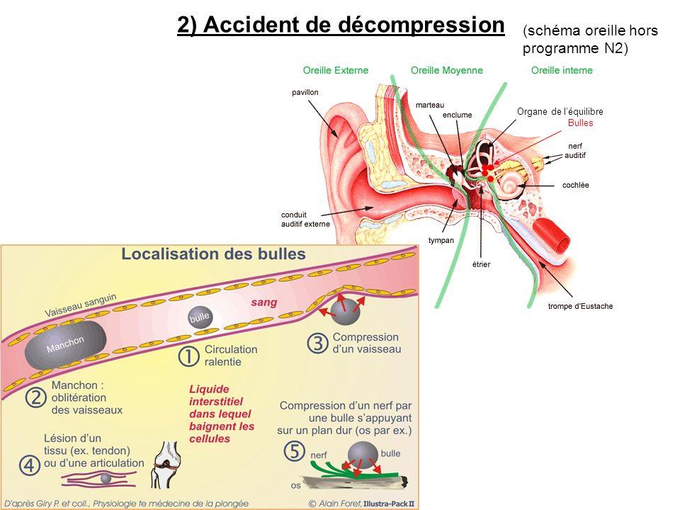 2) Accident de décompression Organe de léquilibre Bulles (schéma oreille hors programme N2)
