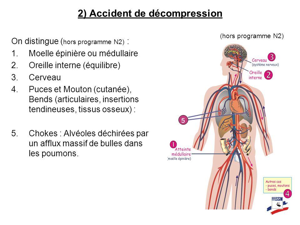On distingue ( hors programme N2) : 1.Moelle épinière ou médullaire 2.Oreille interne (équilibre) 3.Cerveau 4.Puces et Mouton (cutanée), Bends (articu