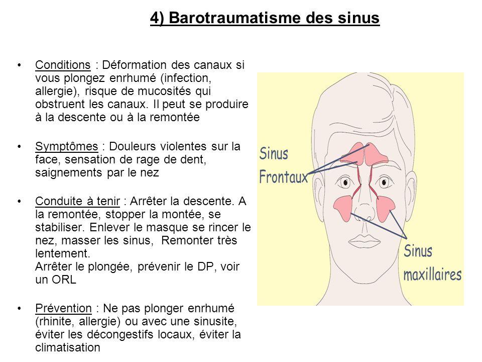 Conditions : Déformation des canaux si vous plongez enrhumé (infection, allergie), risque de mucosités qui obstruent les canaux. Il peut se produire à