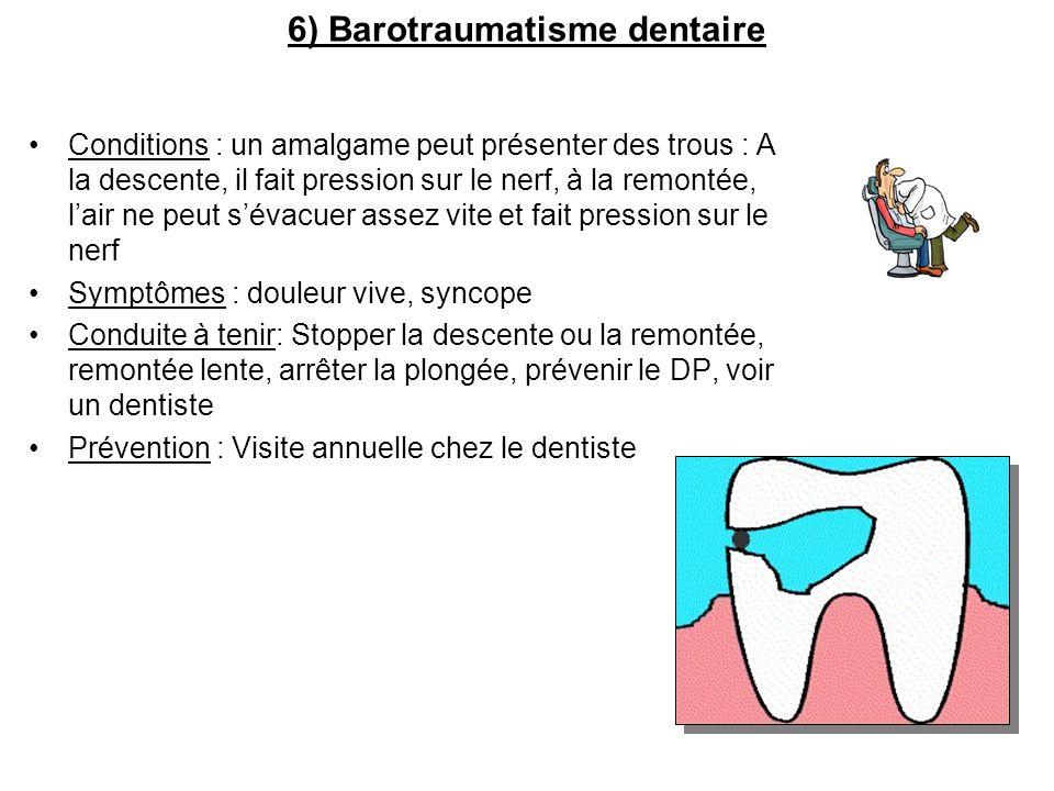 6) Barotraumatisme dentaire Conditions : un amalgame peut présenter des trous : A la descente, il fait pression sur le nerf, à la remontée, lair ne pe