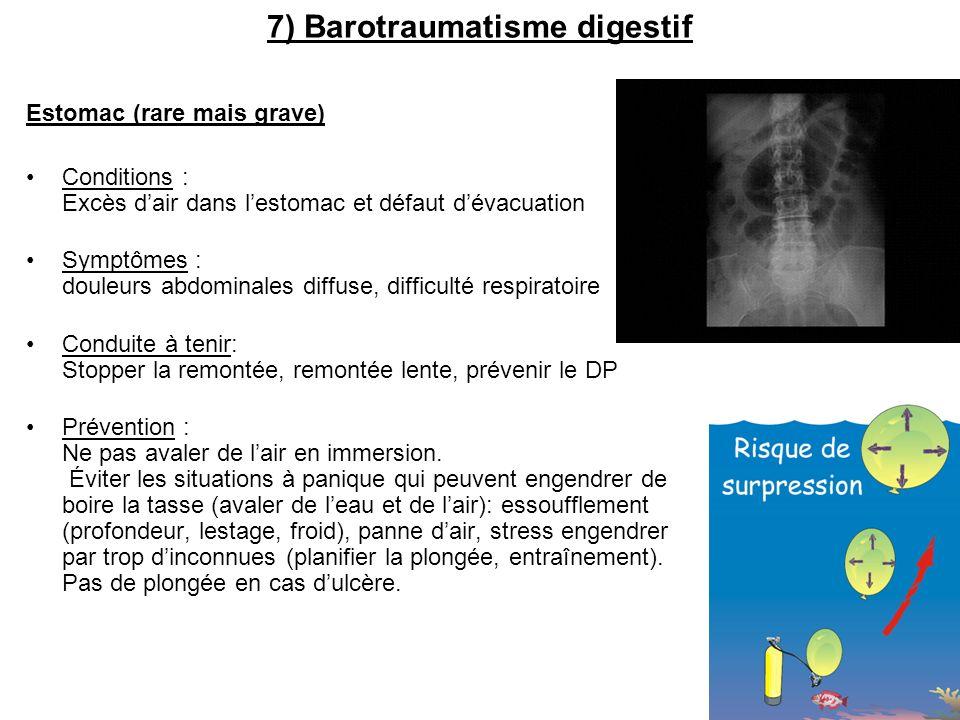 7) Barotraumatisme digestif Estomac (rare mais grave) Conditions : Excès dair dans lestomac et défaut dévacuation Symptômes : douleurs abdominales dif