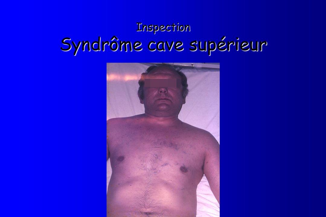 Inspection Syndrôme cave supérieur