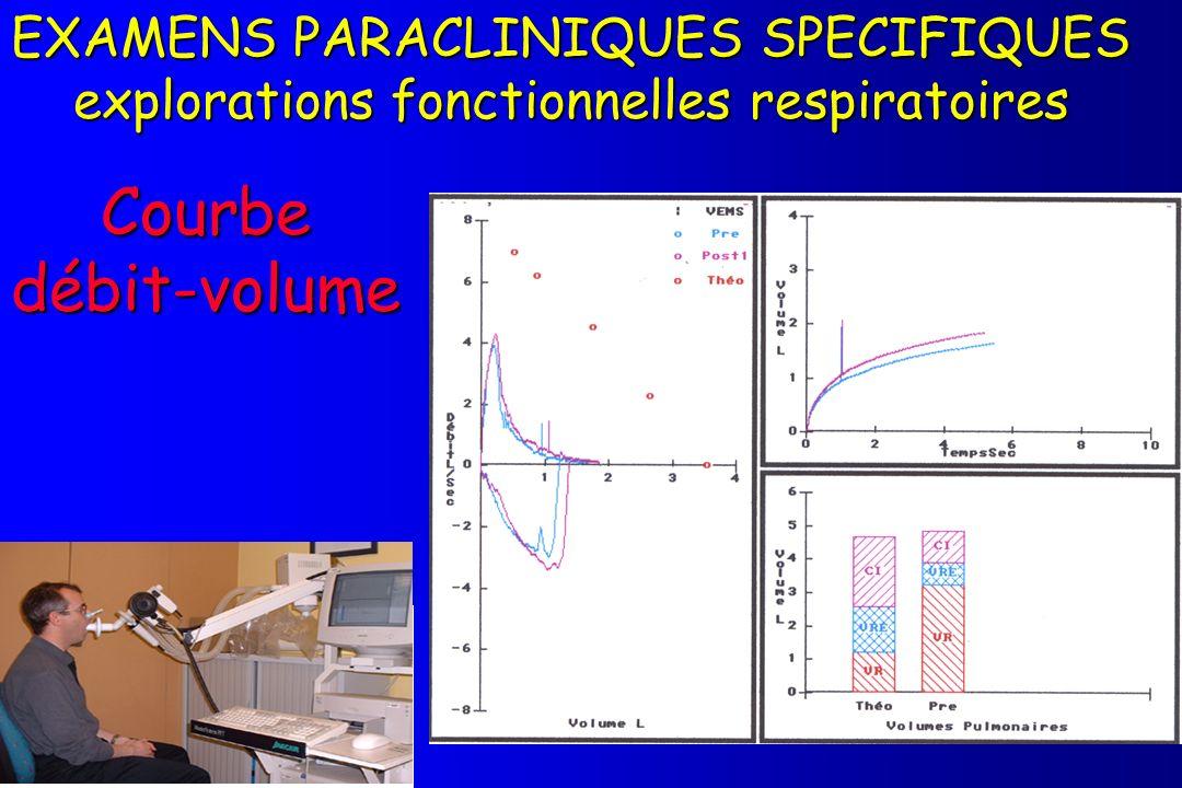 Courbe débit-volume EXAMENS PARACLINIQUES SPECIFIQUES explorations fonctionnelles respiratoires Spirométrie (courbe débits- volumes) Débit L / sec Vol