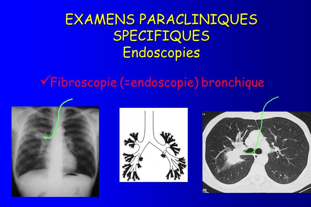 Fibroscopie (=endoscopie) bronchique
