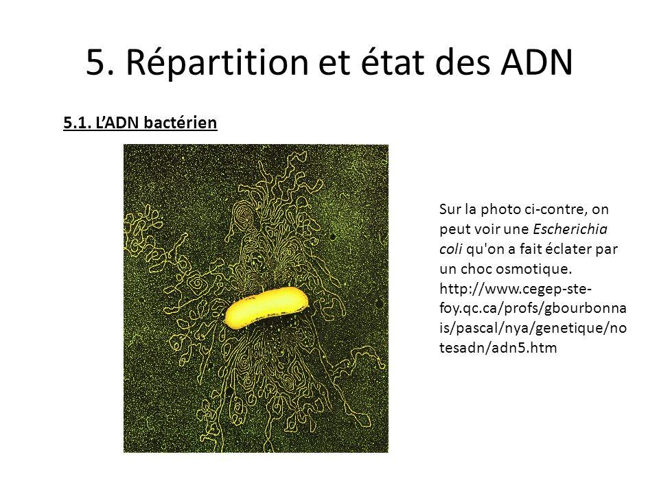 5. Répartition et état des ADN 5.1. LADN bactérien Sur la photo ci-contre, on peut voir une Escherichia coli qu'on a fait éclater par un choc osmotiqu