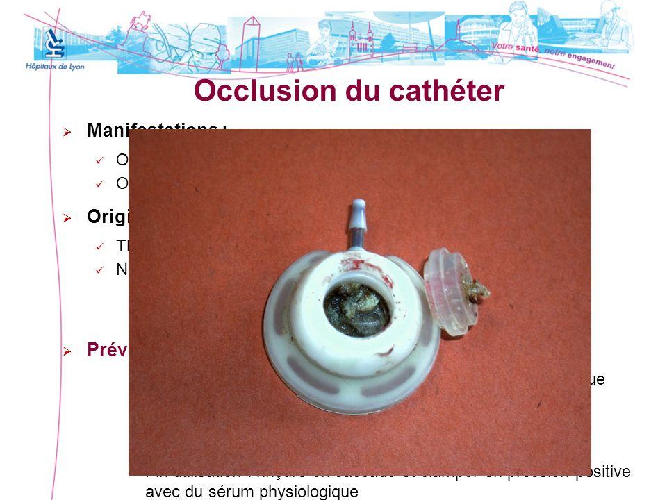 Occlusion du cathéter Manifestations : Occlusion partielle : reflux ou aspiration de sang impossible Occlusion complète : impossibilité dutiliser le c