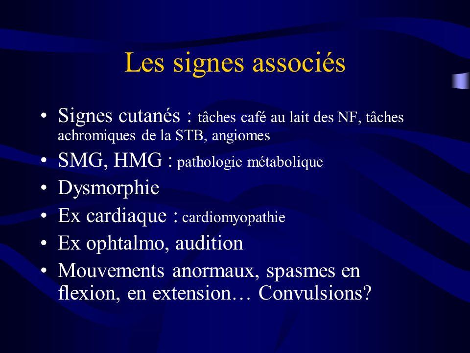 Les signes associés Signes cutanés : tâches café au lait des NF, tâches achromiques de la STB, angiomes SMG, HMG : pathologie métabolique Dysmorphie E