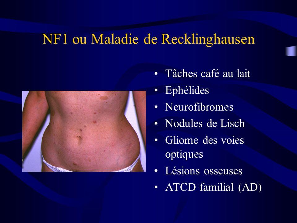 NF1 ou Maladie de Recklinghausen Tâches café au lait Ephélides Neurofibromes Nodules de Lisch Gliome des voies optiques Lésions osseuses ATCD familial